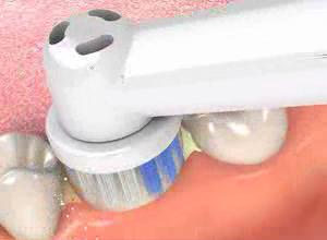 movie_dental_check_up.jpg