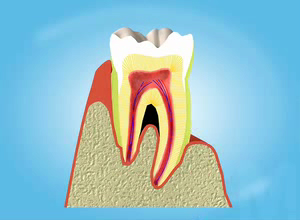 movie_gum_disease.jpg
