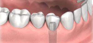 implant-crown1.jpg
