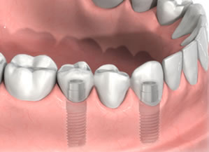 implant-bridge.jpg