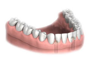 3. Support under  complete dentures  - there is an enormous improvement in the fit, comfort and chewing ability of dentures that are attached to implants.Support implants can also be placed under  partial dentures  to improve the fit, and remove the need for unsightly clasps.