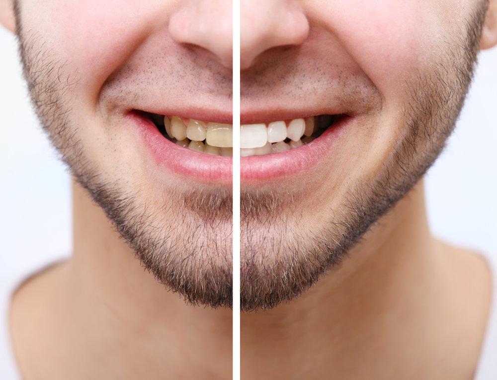 teeth whitening kilkenny