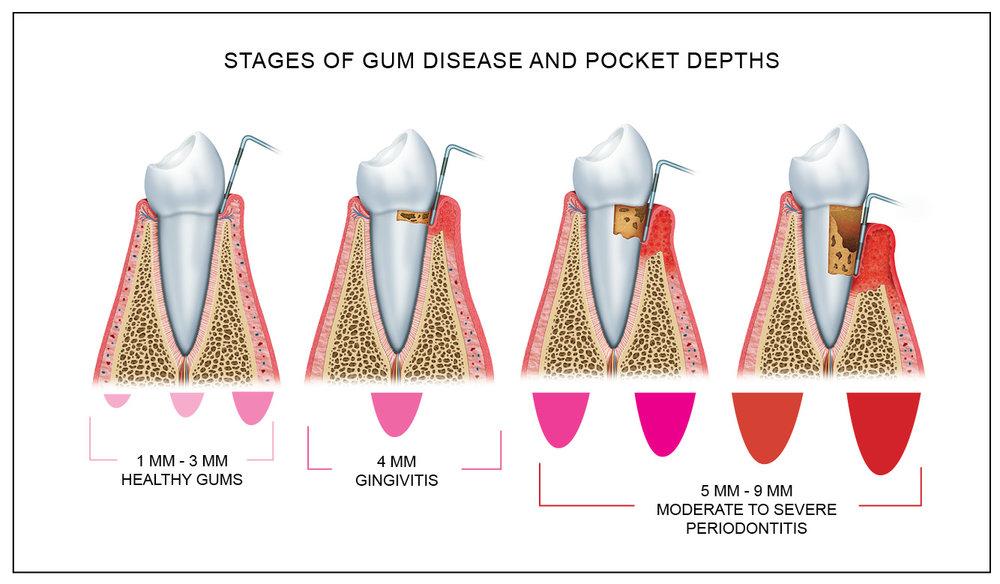 gum_disease_pocket_depth.jpg
