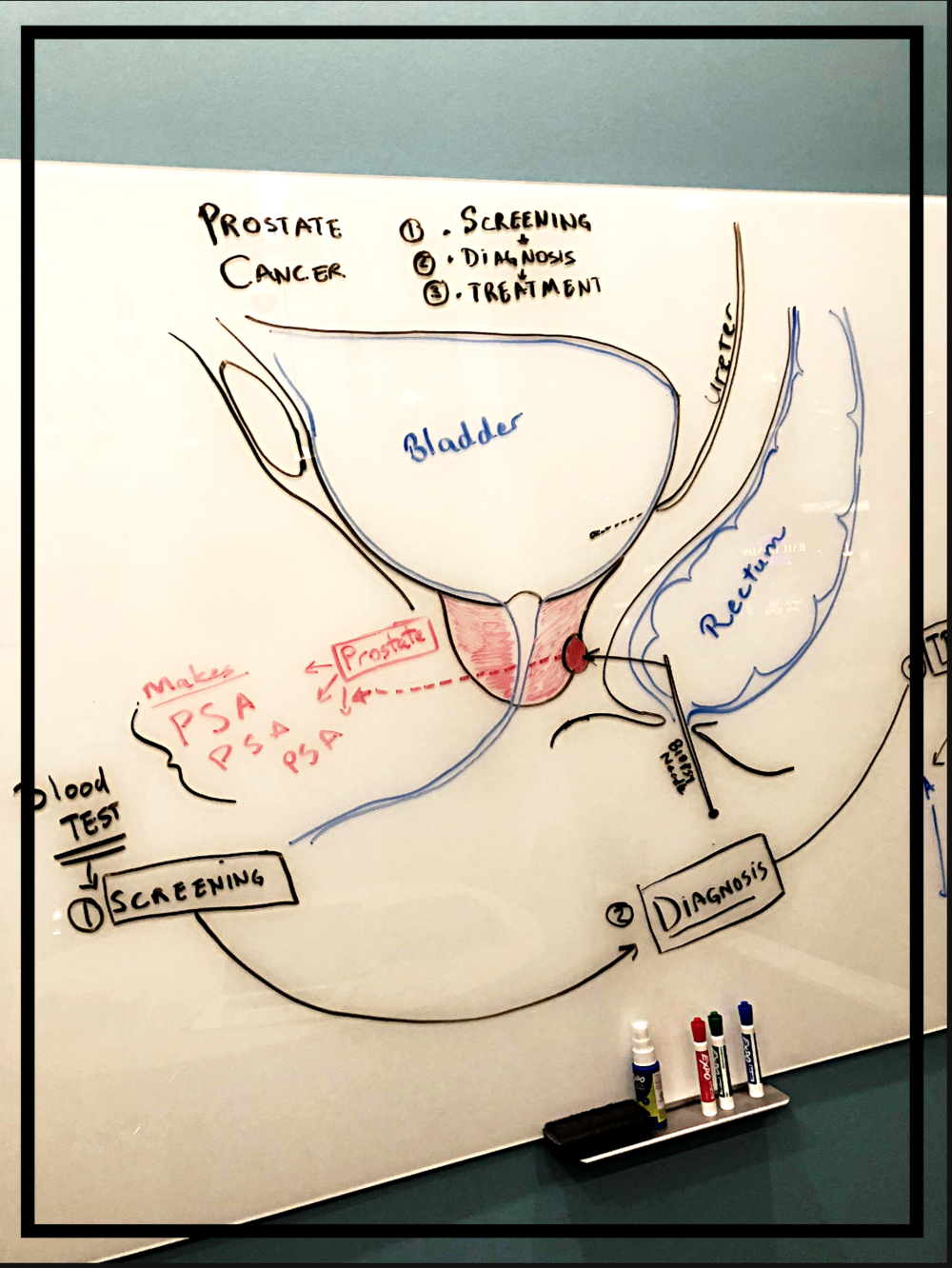 Prostate cancer - illustration of screening, diagnosis and treatment options.     Copyright: Fairbanks Urology, LLC