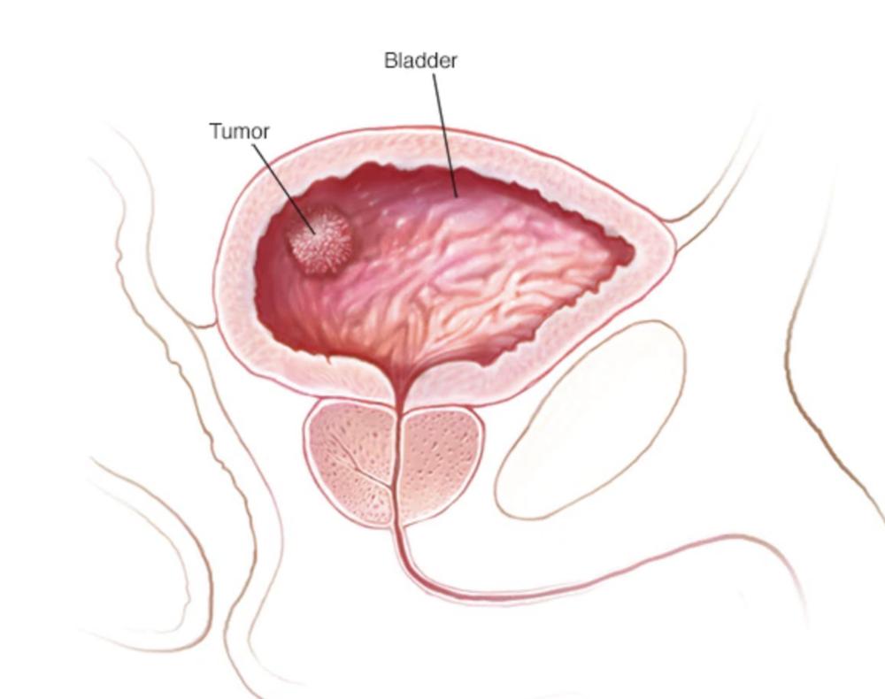 Bladder Cancer — Fairbanks Urology
