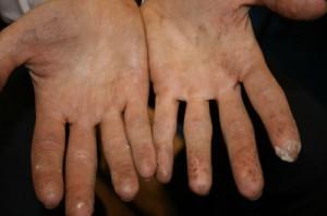 jon-hands