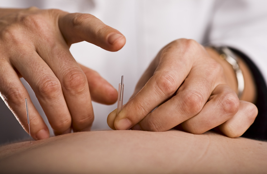 The most important thing I need to explain to you is that acupuncture works by helping the body get more out of its own natural healing resources.  -
