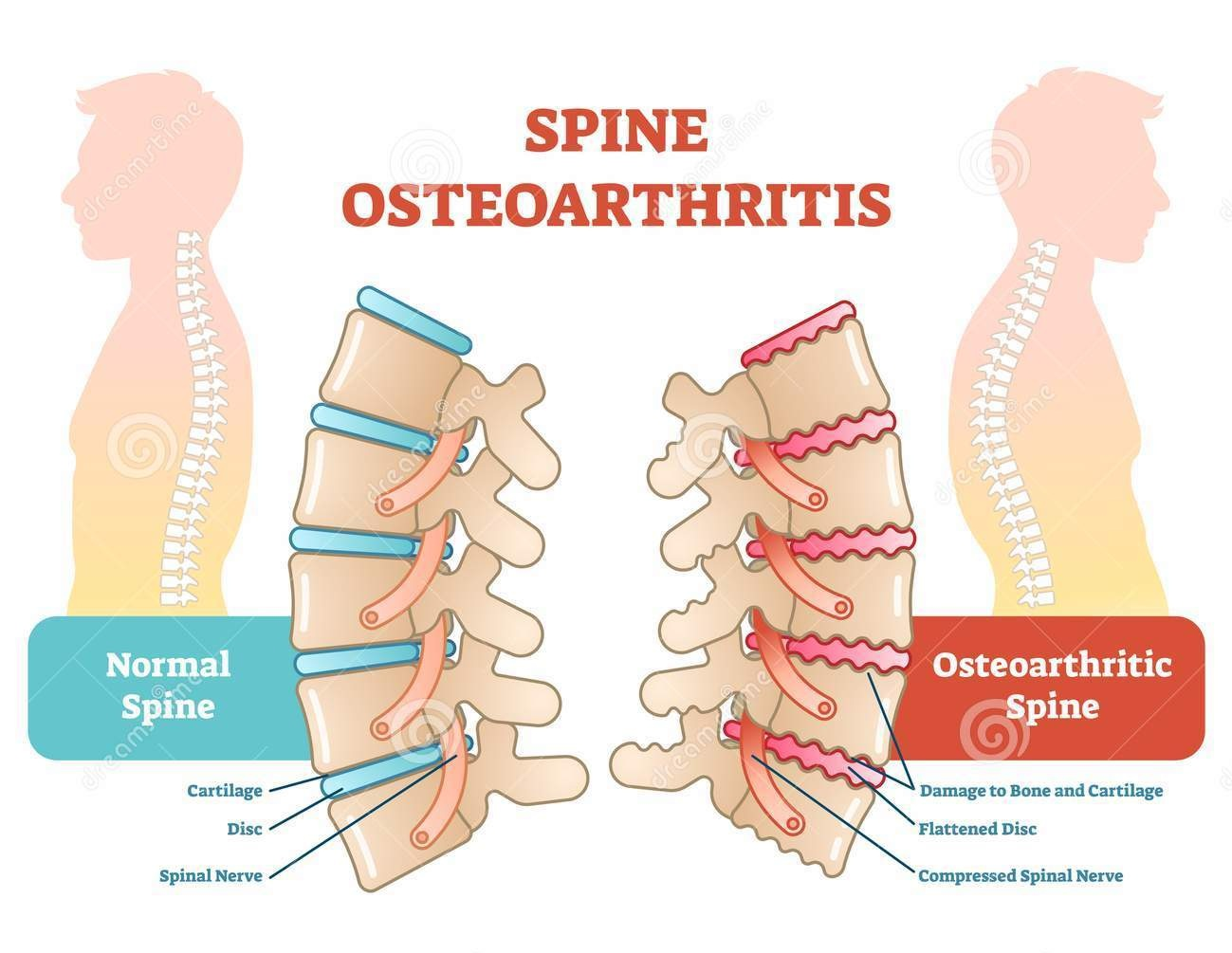 Back Arthritis Can Chiropractic Care Help? \u2014 Chiropractor