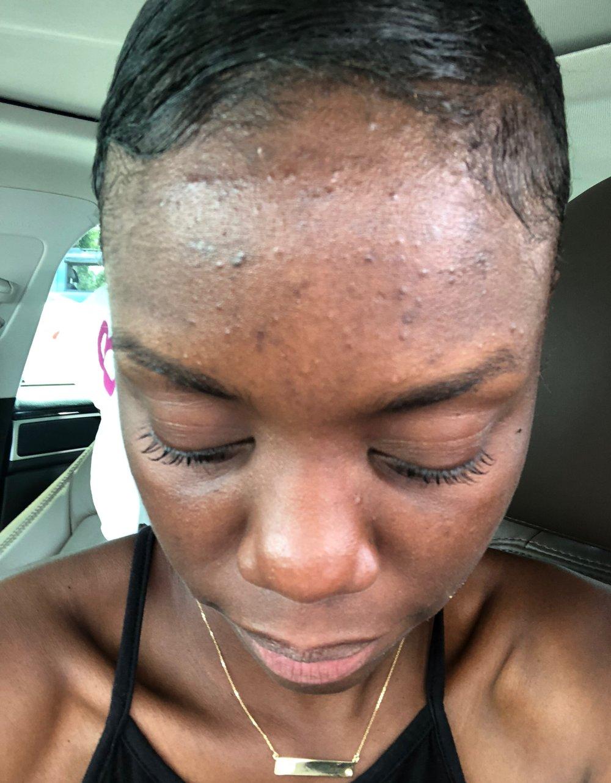 Forehead. -