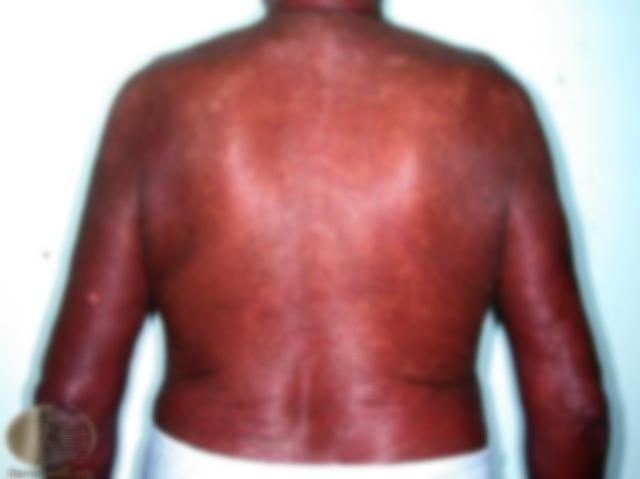 erythroderma-07.jpg