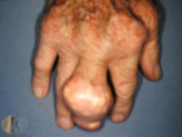 gout6.jpg
