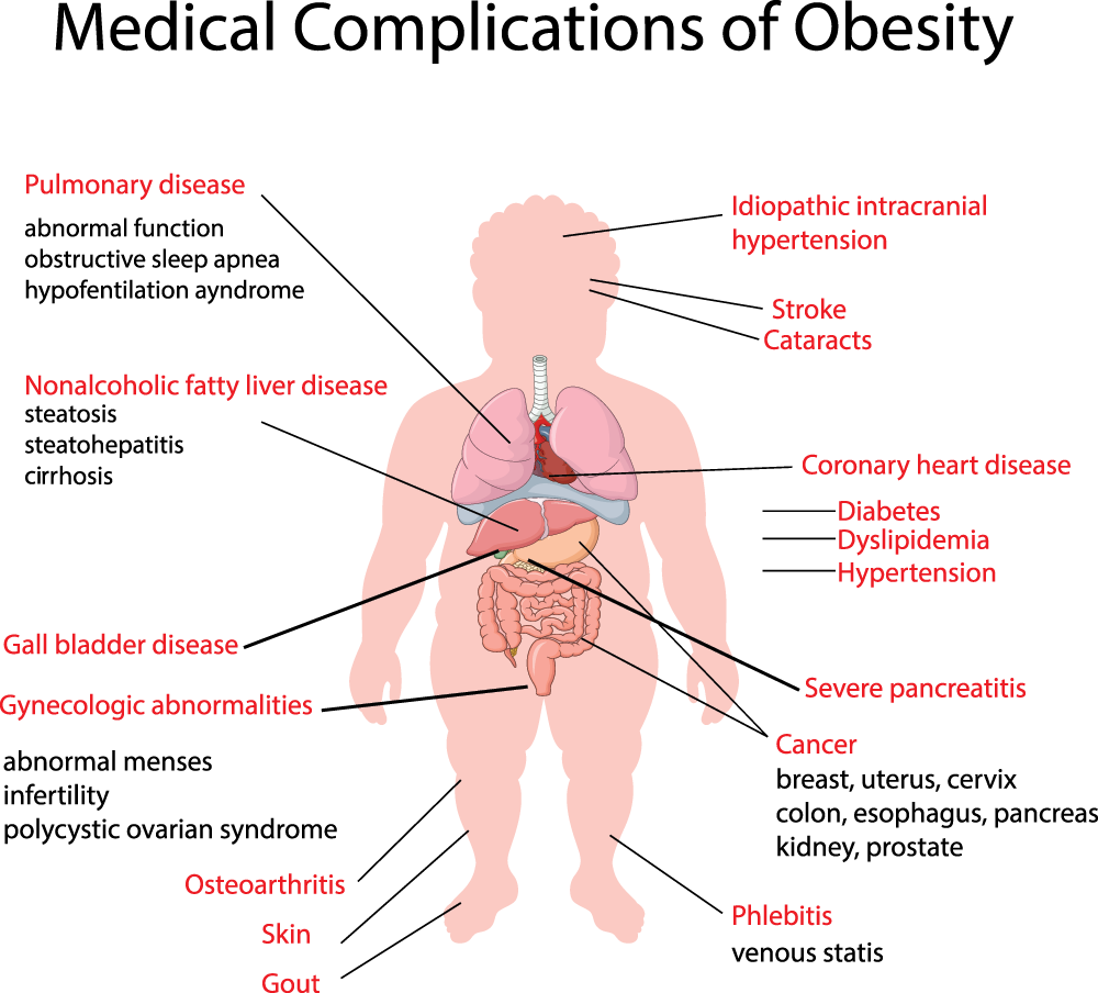 medical_complications_obesity.png