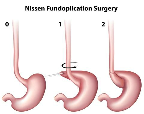 fundoplication.jpg