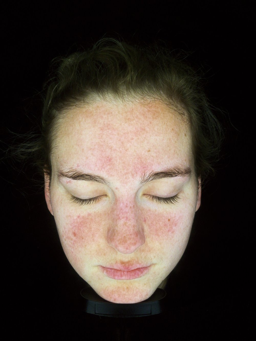 Pigmentation, above the upper lip