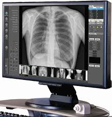 Digital X-ray