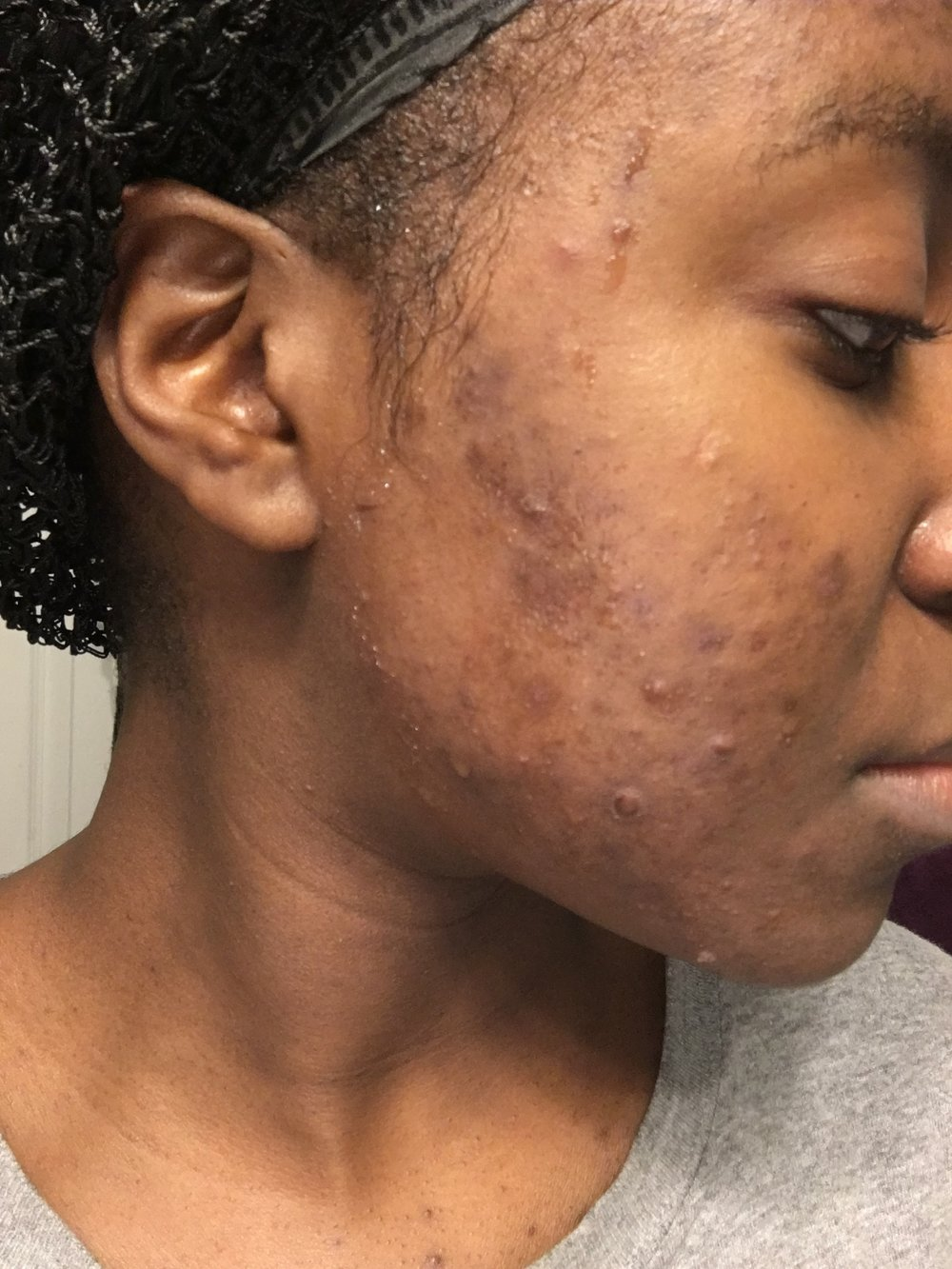 This is a few days before getting another bottle of the Body Shop Tea Tree Skin Cleansing Face Wash.