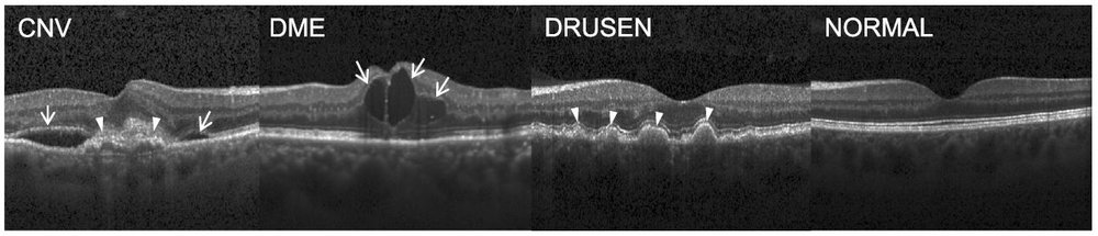 Fig. 1: From left to right: Choroidal Neovascularization (CNV) with neovascular membrane (white arrowheads) and associated subretinal fluid (arrows). Diabetic Macular Edema (DME) with retinal-thickening-associated intraretinal fluid (arrows). Multiple drusen (arrowheads) present in early AMD.  Normal retina with preserved foveal contour and absence of any retinal fluid/edema. Image obtained from the following  publication .