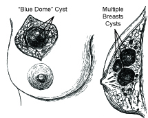 Figure 1.4. Examples of Chronic Cystic Mastitis, and the three stages of their formation (Inspired by the artwork of Dr. Frank H. Netter).