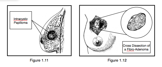Figure 1.11.  Example of a Benign Intracystic Papilloma. (Inspired by the original artwork of Dr. Frank H. Netter).  Figure 1.12.  Examples of a Benign Fibro-Adenoma. (Inspired by the original artwork of Dr. Frank H. Netter).