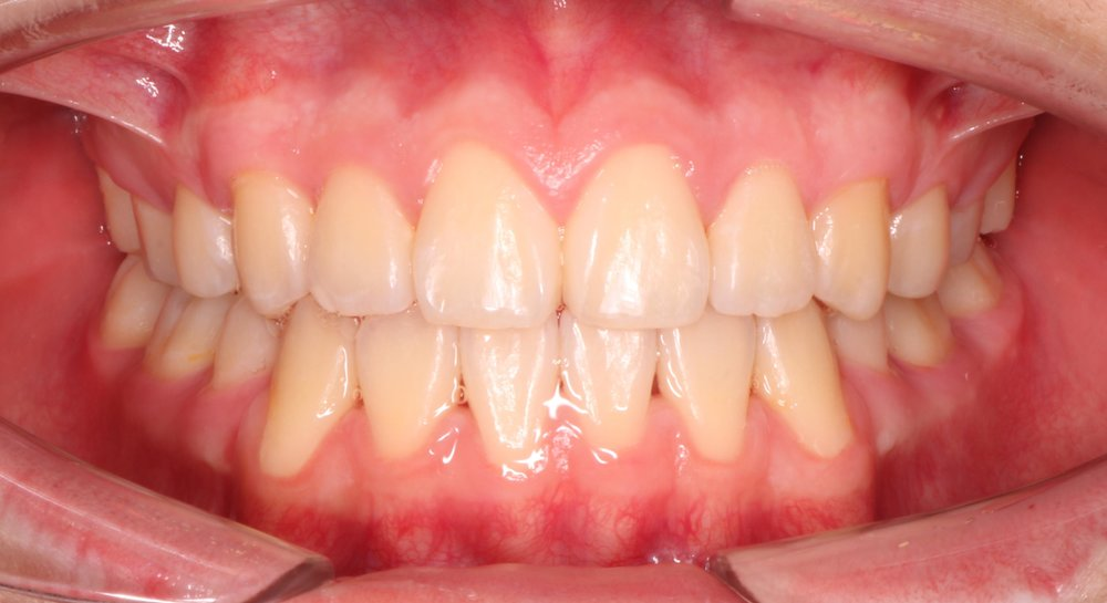 Case 1 Post - 1418648 - Kelvin Yi - Final - Intraoral Center.jpg
