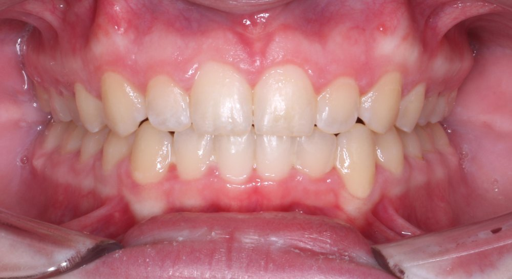 Case 2 Post - 1527020 - Jamie Hopper - Final - Intraoral Center.jpg