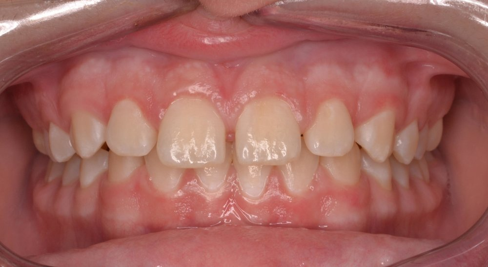 Case 4 Pre - 1635647 - Zach Cosby - Initial - Intraoral Center.jpg