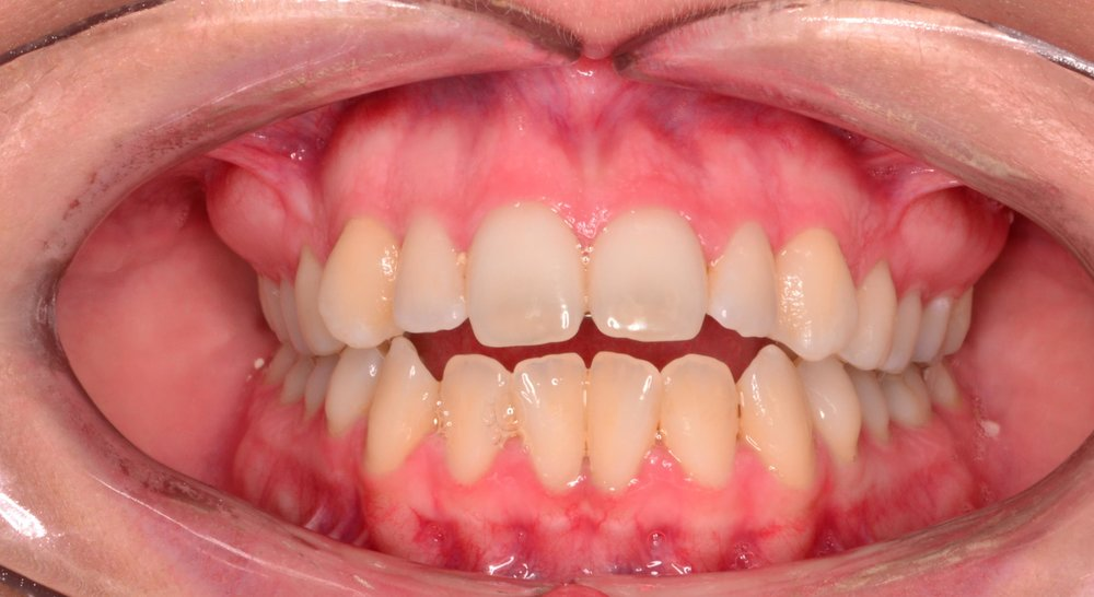 Case 5 Pre - 1534062 - Kelsey Winnett - Initial - Intraoral Center.jpg