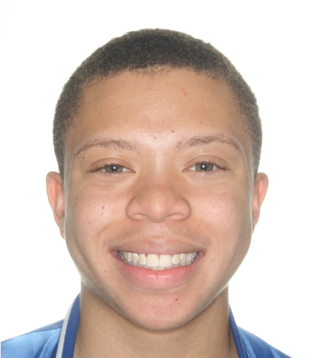 Copy of Case 6 Post - 1529247 - Zavier White - Progress - Facial Front Smiling.jpg