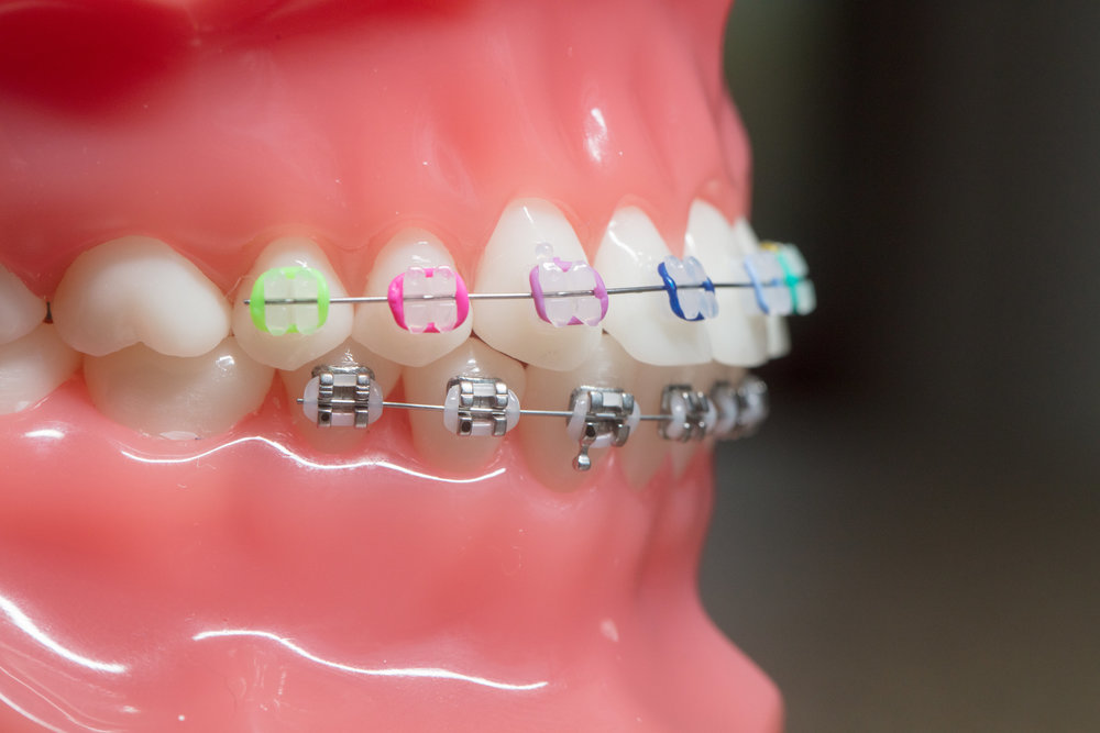 Samuelson Orthodontics - larity™ ADVANCED Ceramic Brackets with Color