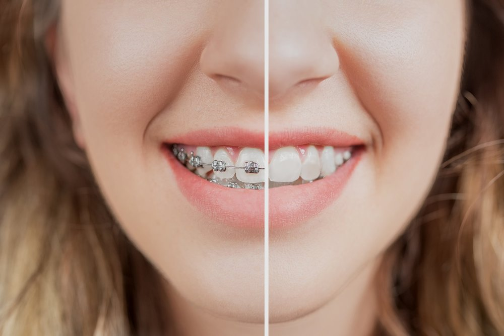 EXPECT EXCELLENCE.   Welcome to Samuelson Orthodontics!   Learn more