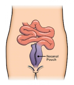 "Two to three months later, the temporary ostomy is ""reversed"" and stool is diverted back down through the intestinal tract and is stored in the pouch before being eliminated via the anus. (image source: American Society of Colon and Rectal Surgeons)"