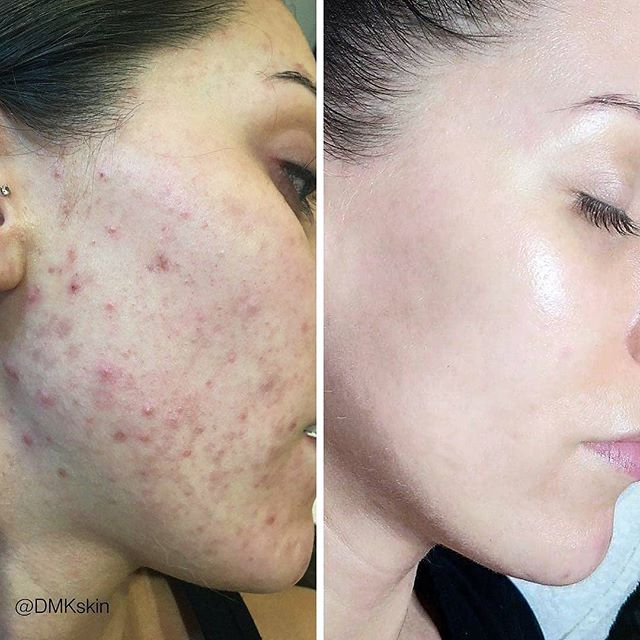 Another great before and after result, courtesy of @dmkskin! #DMKskin #DMKskincare #Skincare #BeautyMelbourne #MelbourneSkin