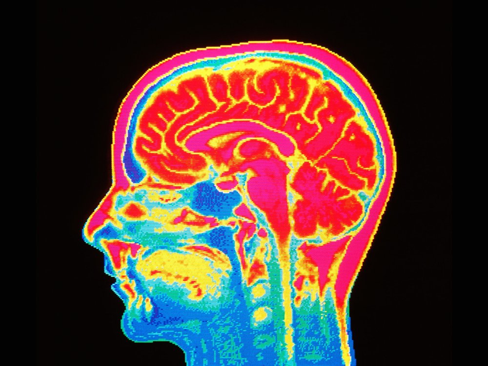 Brain Imaging Of Reward In Eating Disorders Possible Key To
