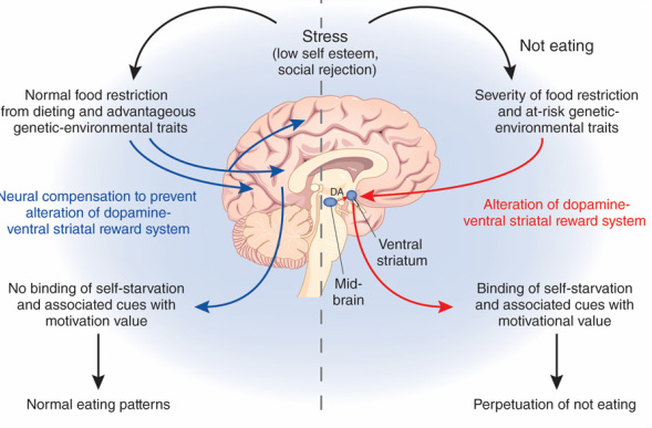 Altered Body State Processing In Anorexia Nervosa Project Heal