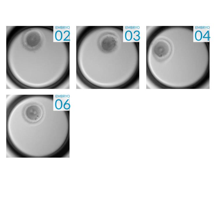 Embryo Image Seven.jpg