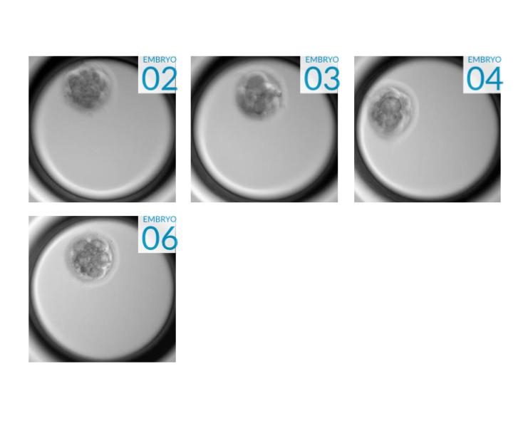 Embryo Image Six.jpg