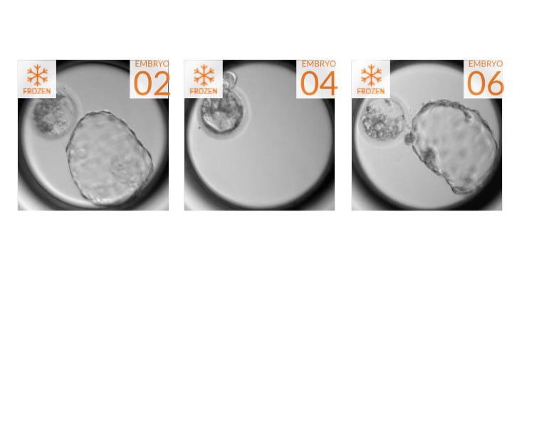 Embryo Image Four.jpg