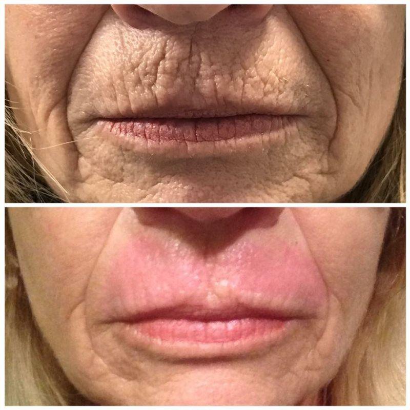 Upper Lip - after tretment