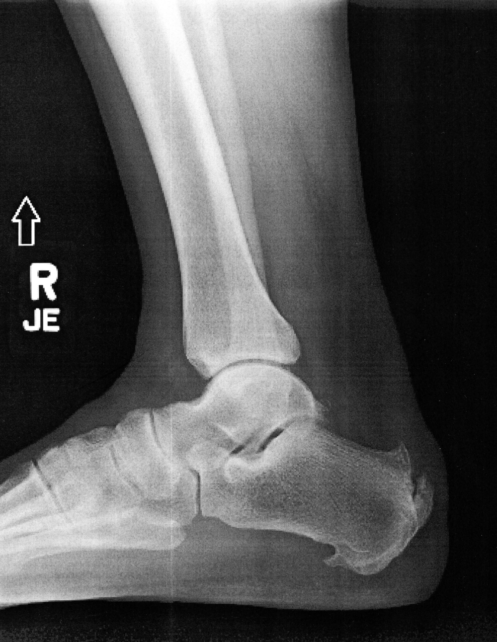 Note the three sharp protrusions on my heel.