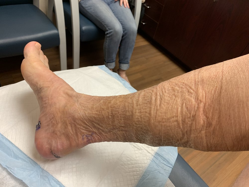 """The leg looks ancient after removing the """"mummy"""" wraps, but now it can BREATH."""