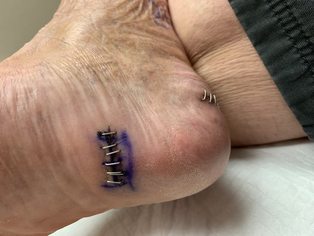 Bottom of the foot showing incision for Plantar Fascia