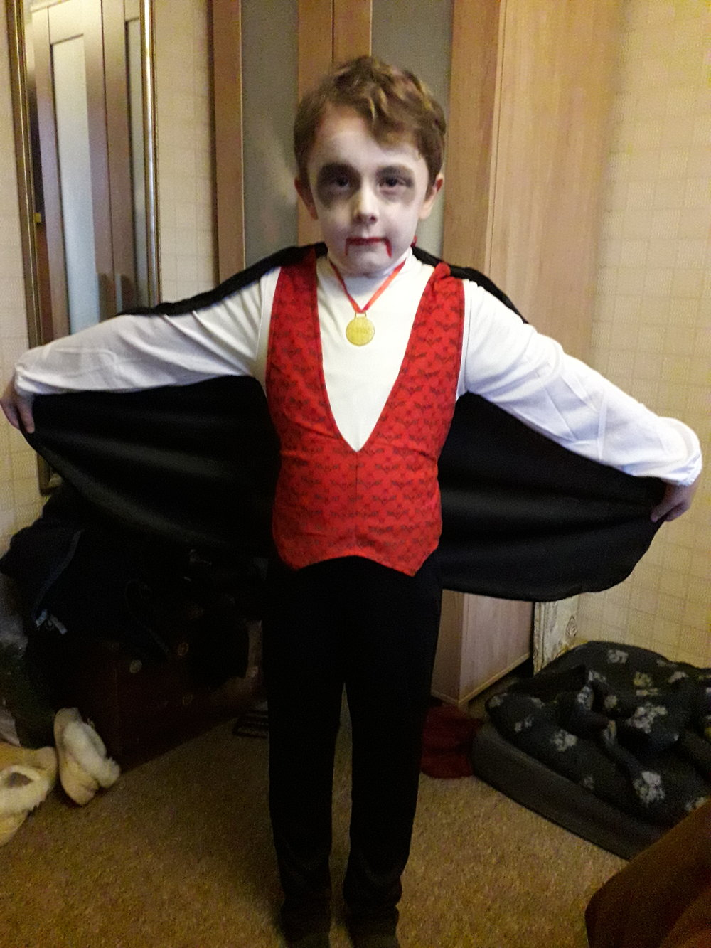 "Copy of Logan Conway, Age 7, Hampshire, UK, Perthes (right hip), ""Count Dracula"""