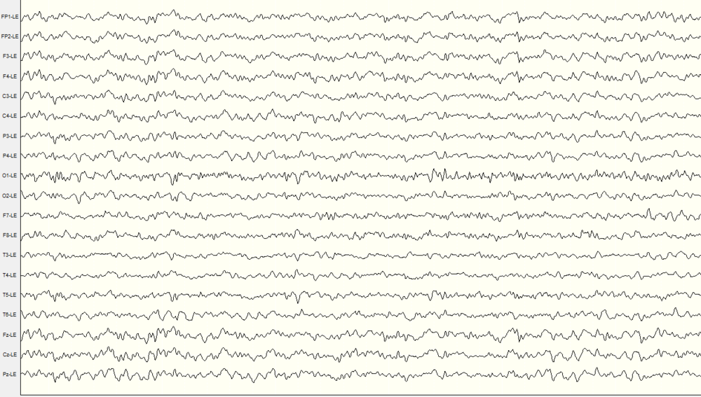 An example of a 19 channel EEG signal