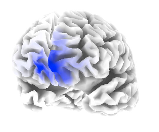 A 3-D model of brain function, showing the same areas of areas of deviance as above. These models allow precise localisation of problem areas in the brain.