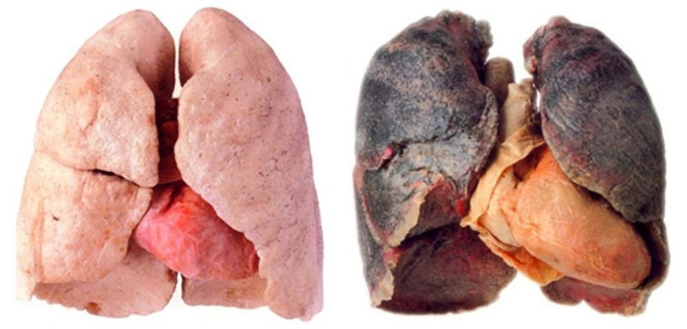 pulmones y corazon.jpg