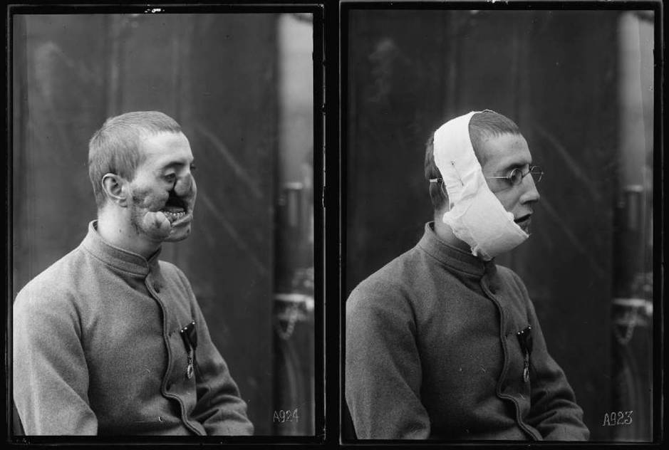 antes-y-despues-de-la-operacion-y-la-colocacion-de-la-mascara-de-ladd-library-of-congress.jpg
