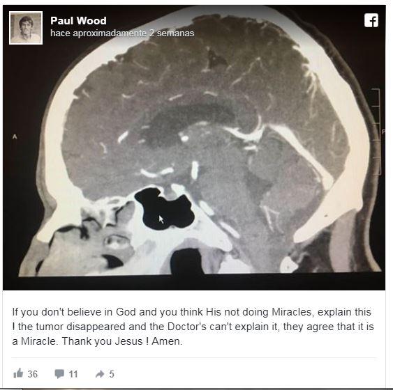 tumor3.jpg