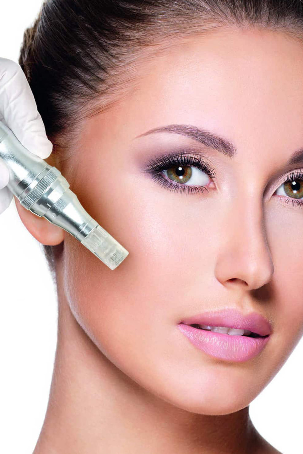 Microneedling - $249 each or $625/pkg 3Collagen induction therapy, also known as microneedling, addresses fine lines, wrinkles, large pores, and uneven skin texture at the cellular level. Accommodating all skin types, microneedling comfortably creates thousands of micro-injuries in the skin, triggering the body's natural wound healing process. The outcome is skin remodeling- beautiful, youthful looking skin with little to no downtime.