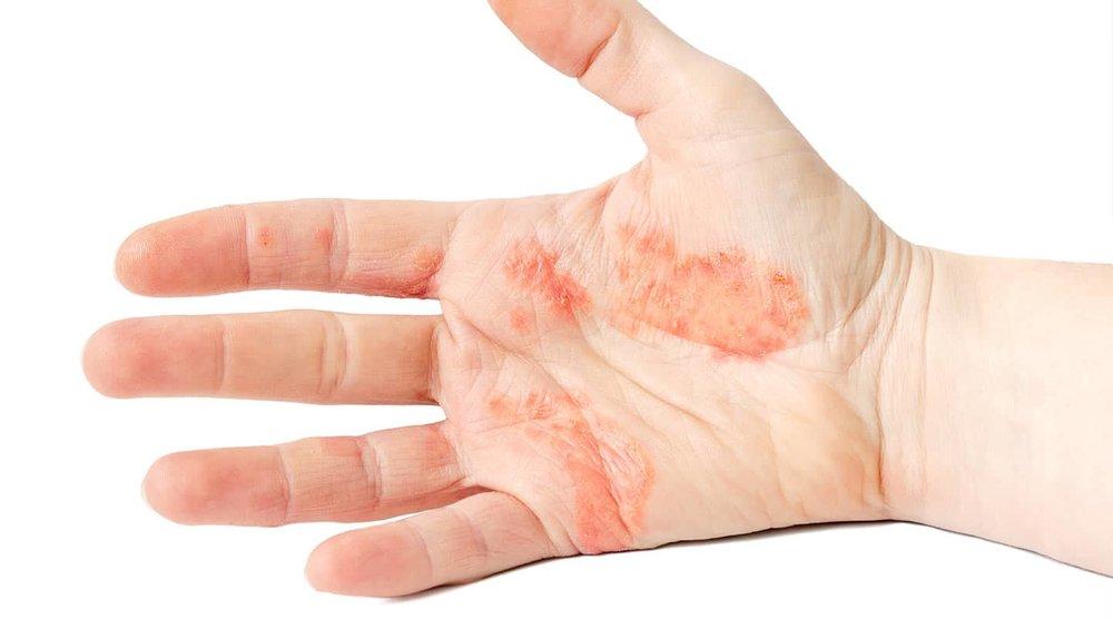 hand-eczema.jpg