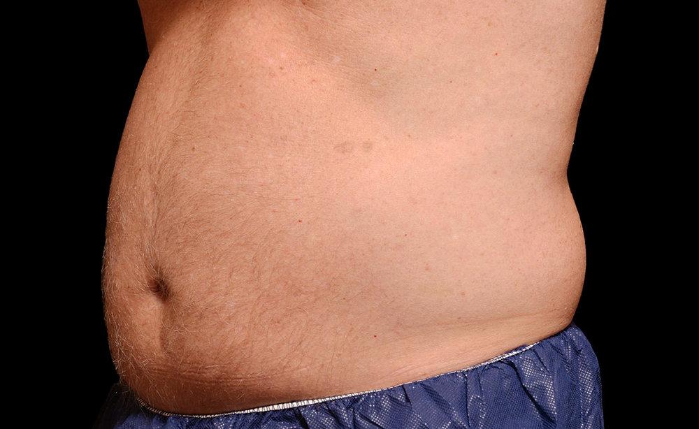 male-abdomen-before.jpg